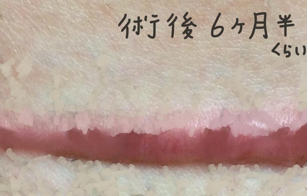 f:id:tarotaroko:20171203222551j:plain