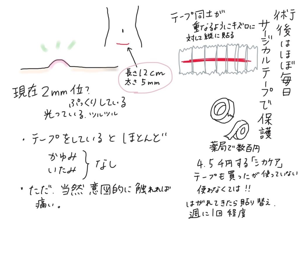 f:id:tarotaroko:20171203224004j:plain