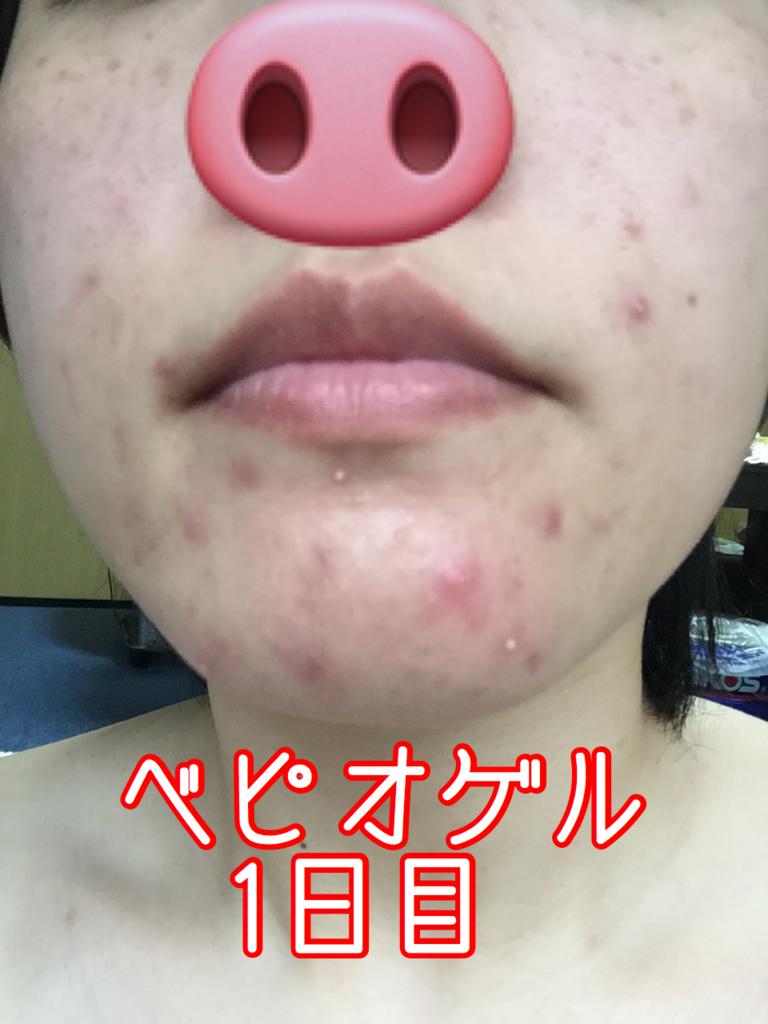 なる ベピオゲル 赤く ベピオゲルの副作用か、皮膚が象の肌のようになってしまった