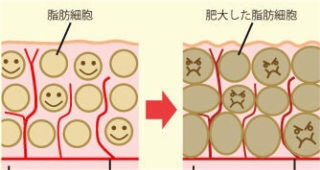 f:id:tatsuki52510:20181024023355j:image