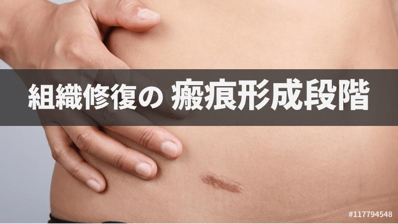 f:id:tatsuki_11_13:20180928010259p:image