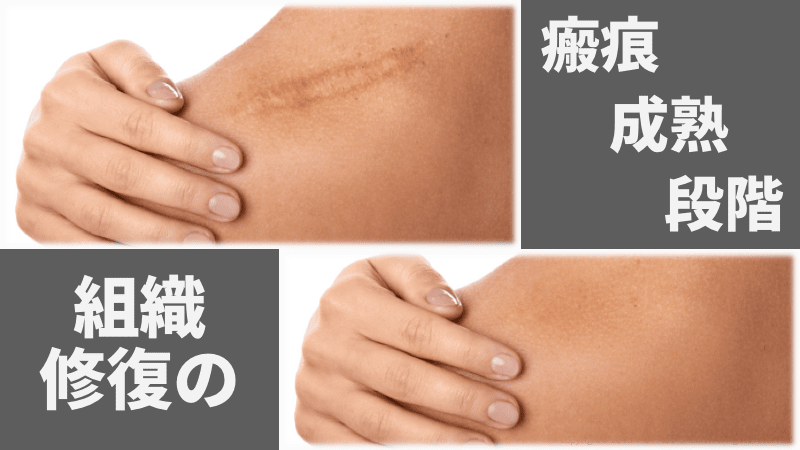 f:id:tatsuki_11_13:20180928014557p:image