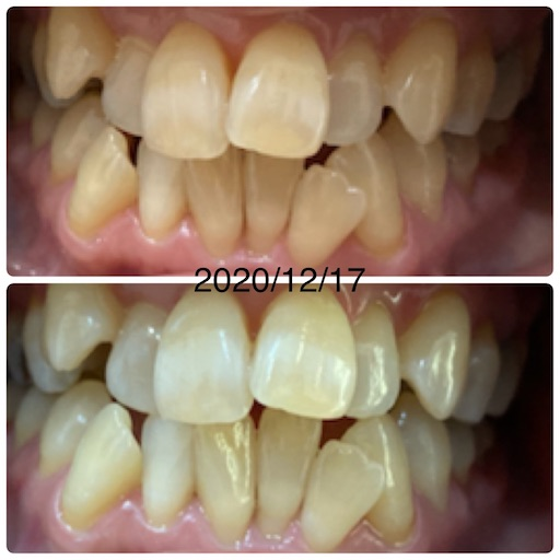 f:id:teethteeth:20201221093835j:image