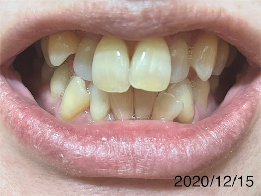 f:id:teethteeth:20201222162953j:image