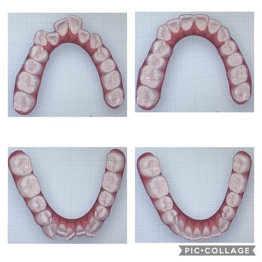 f:id:teethteeth:20210118155652j:image