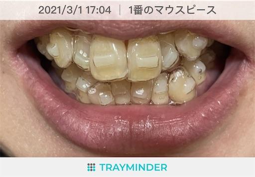 f:id:teethteeth:20210301171414j:image