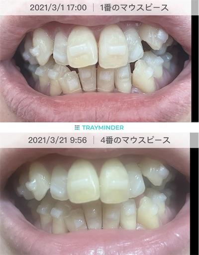 f:id:teethteeth:20210322190752j:image