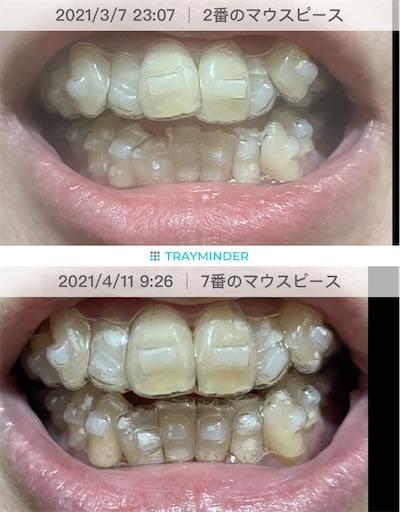 f:id:teethteeth:20210415112455j:image