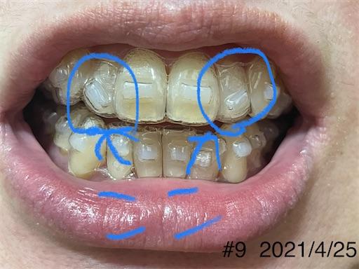 f:id:teethteeth:20210427104946j:image