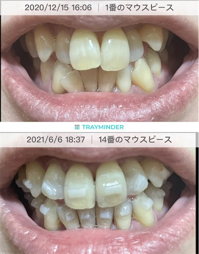f:id:teethteeth:20210607163525j:image