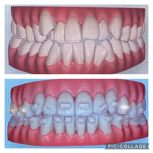 f:id:teethteeth:20210917085447j:image