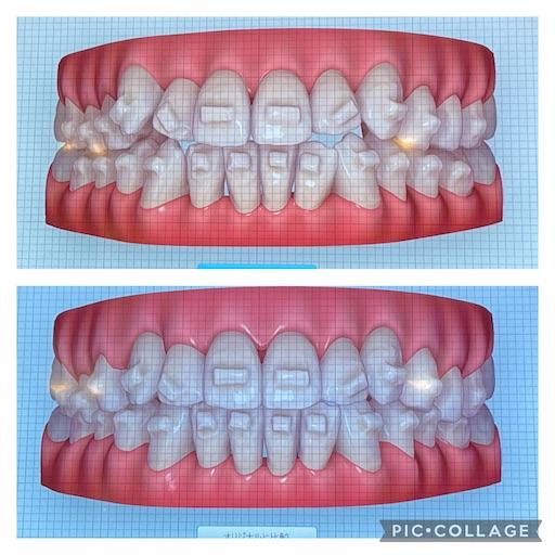 f:id:teethteeth:20210917085449j:image