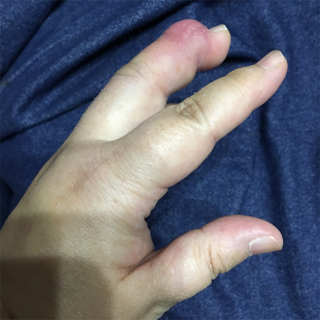 f:id:tendoum:20170519150446j:image