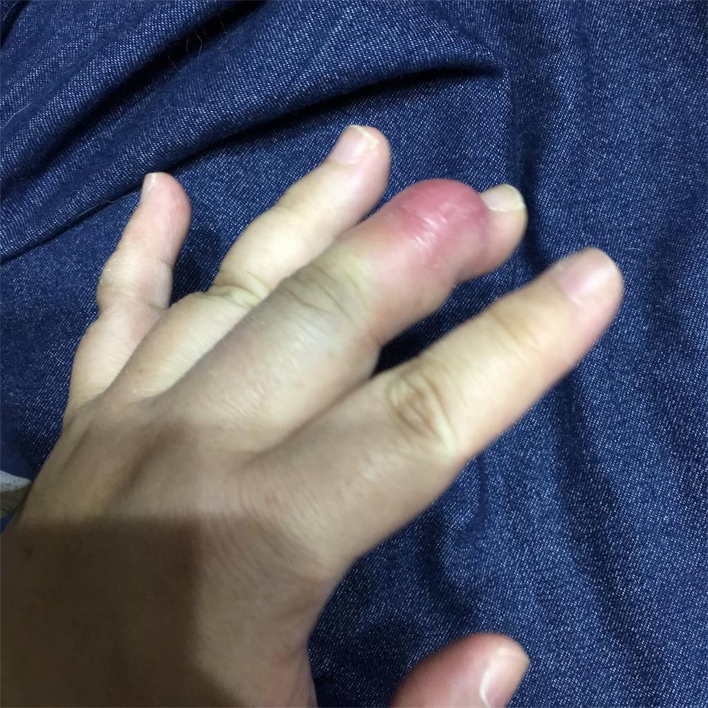 f:id:tendoum:20170519150455j:image