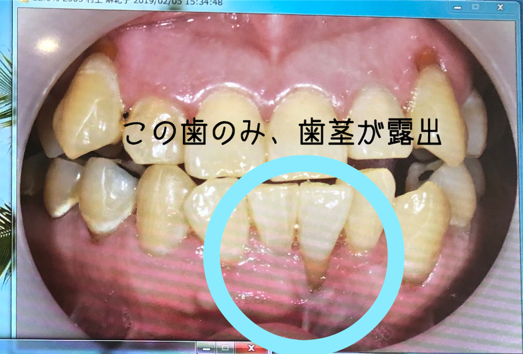 f:id:tendoum:20190301160309p:image
