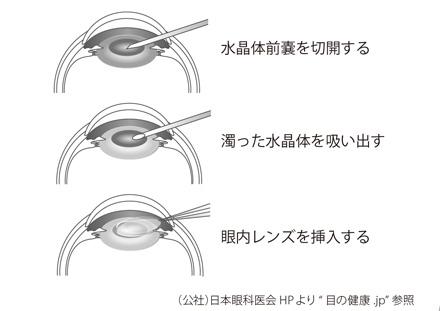 f:id:teramuraso:20200202181309j:plain