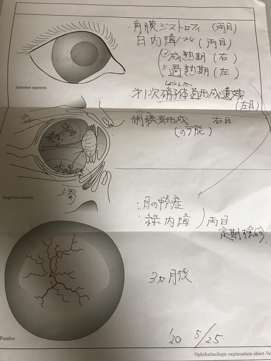 f:id:tetsujin64go:20200525183459j:plain