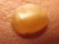 [沖縄][スパム][肉][缶詰][郷土料理][海][旅][イベント][2016]皮膚が真っ赤に腫れ上がり、ヒドイとこだと直径4cmの水ぶくれが