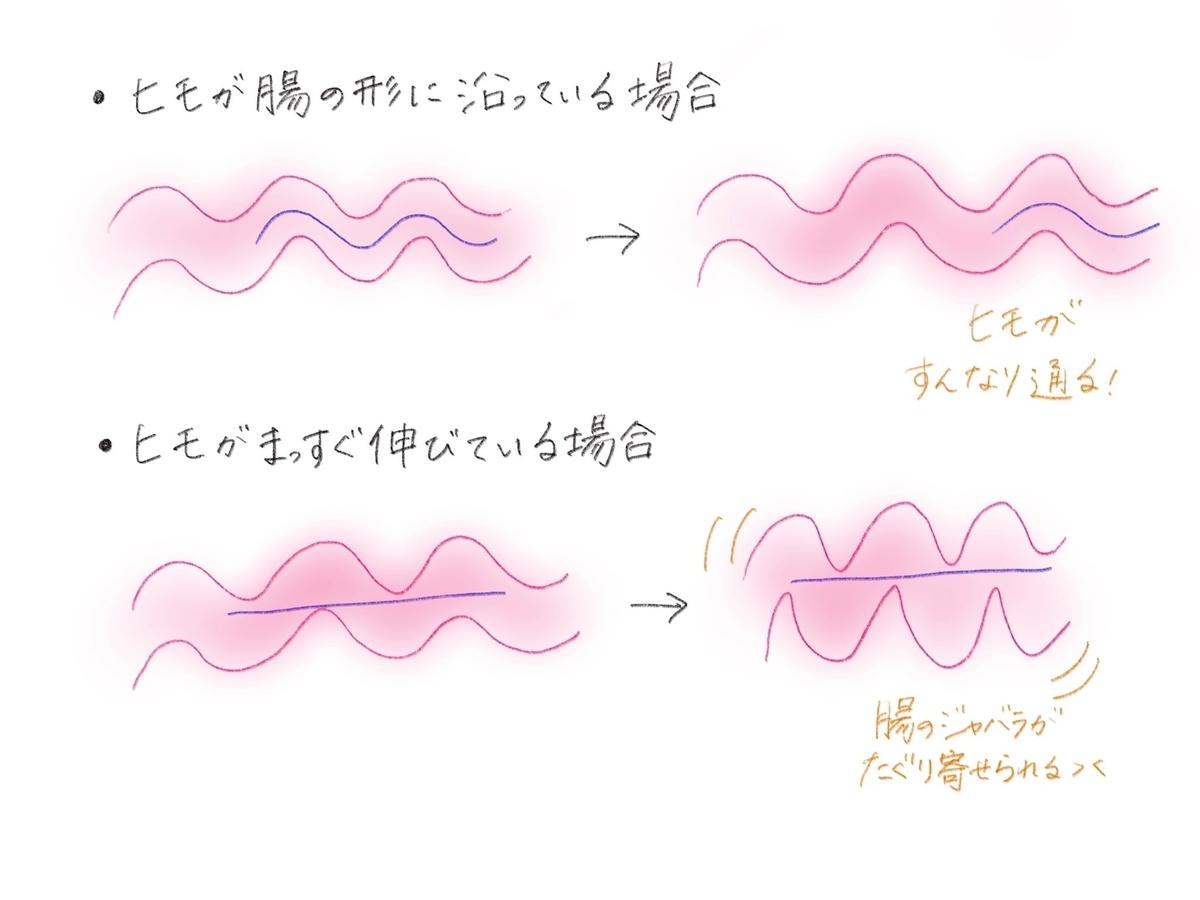 腸内の紐のイメージ図