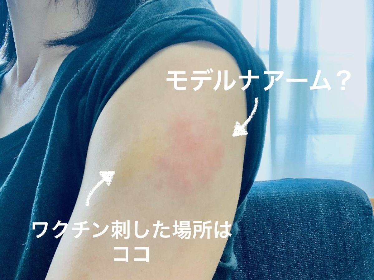 コロナワクチンで赤くなった左腕