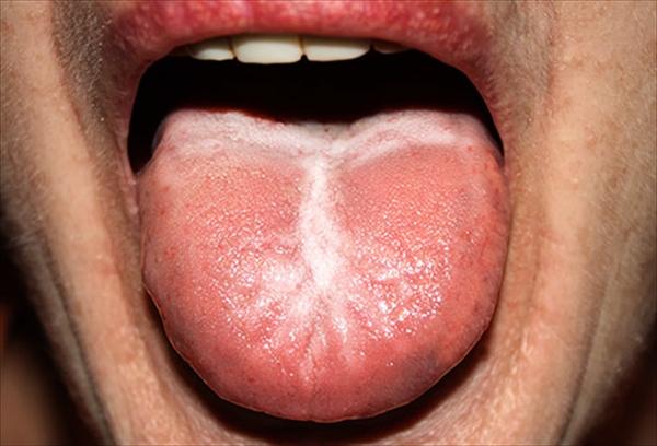 寝起き 口臭 舌苔