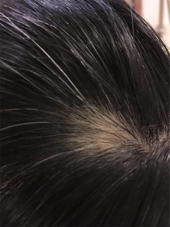 f:id:toguo:20171229114018j:image:w450