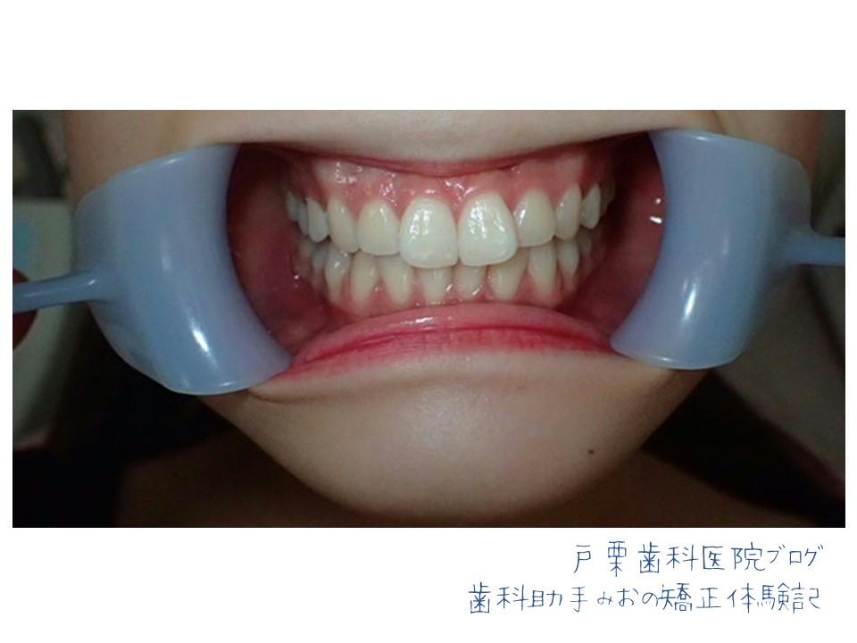 f:id:toguri-dental:20180910162229j:plain