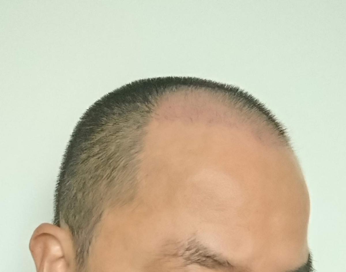 自毛植毛44日目