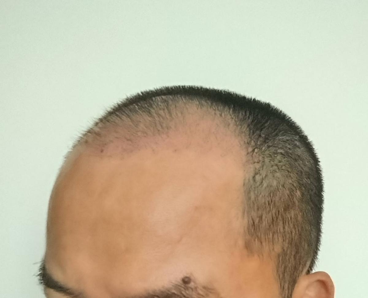 自毛植毛45日目