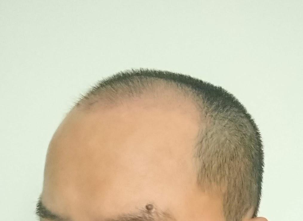 自毛植毛47日目