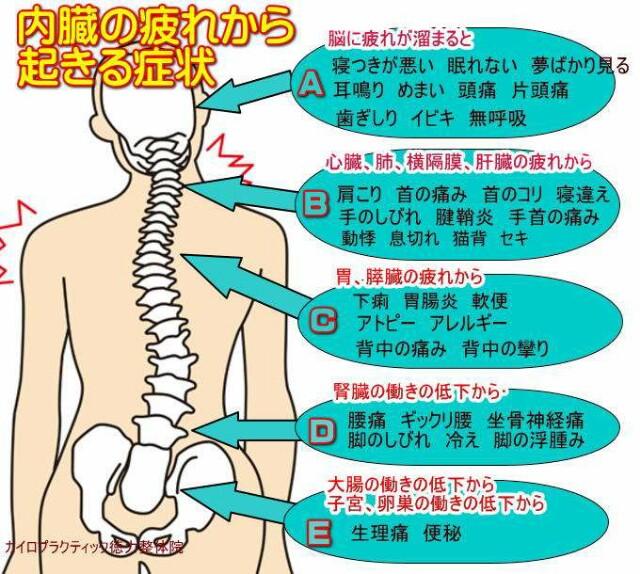 f:id:tokurikiseitai:20170313101424j:image