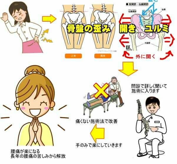 f:id:tokurikiseitai:20170315192818j:image