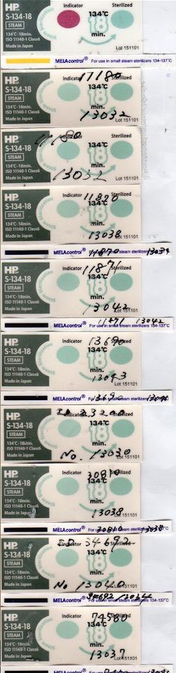 f:id:tokyo-microscope:20170513165618j:plain