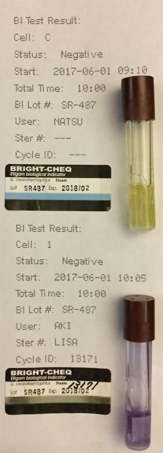 f:id:tokyo-microscope:20170602094233j:plain