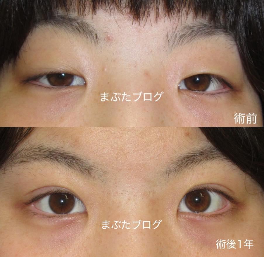 人生が変わる10代の眼瞼下垂手術併用の全切開二重術 〜先天性眼瞼下垂の治療〜 , 王子のまぶたブログ 眼瞼下垂と二重