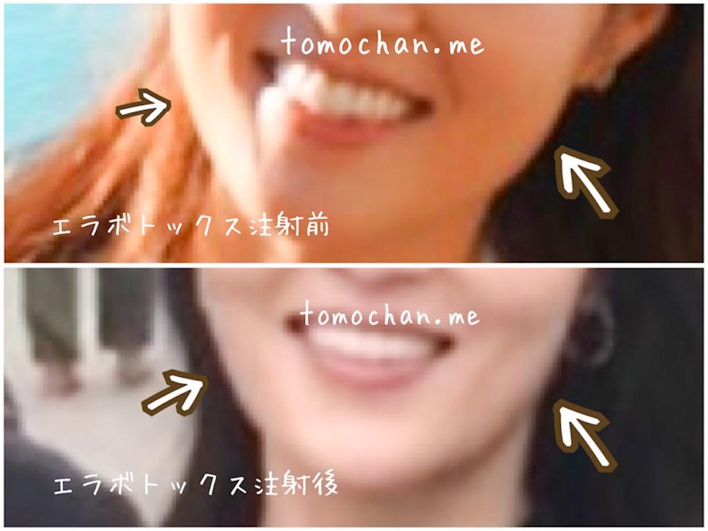 f:id:tomochan-me:20210115174540j:image