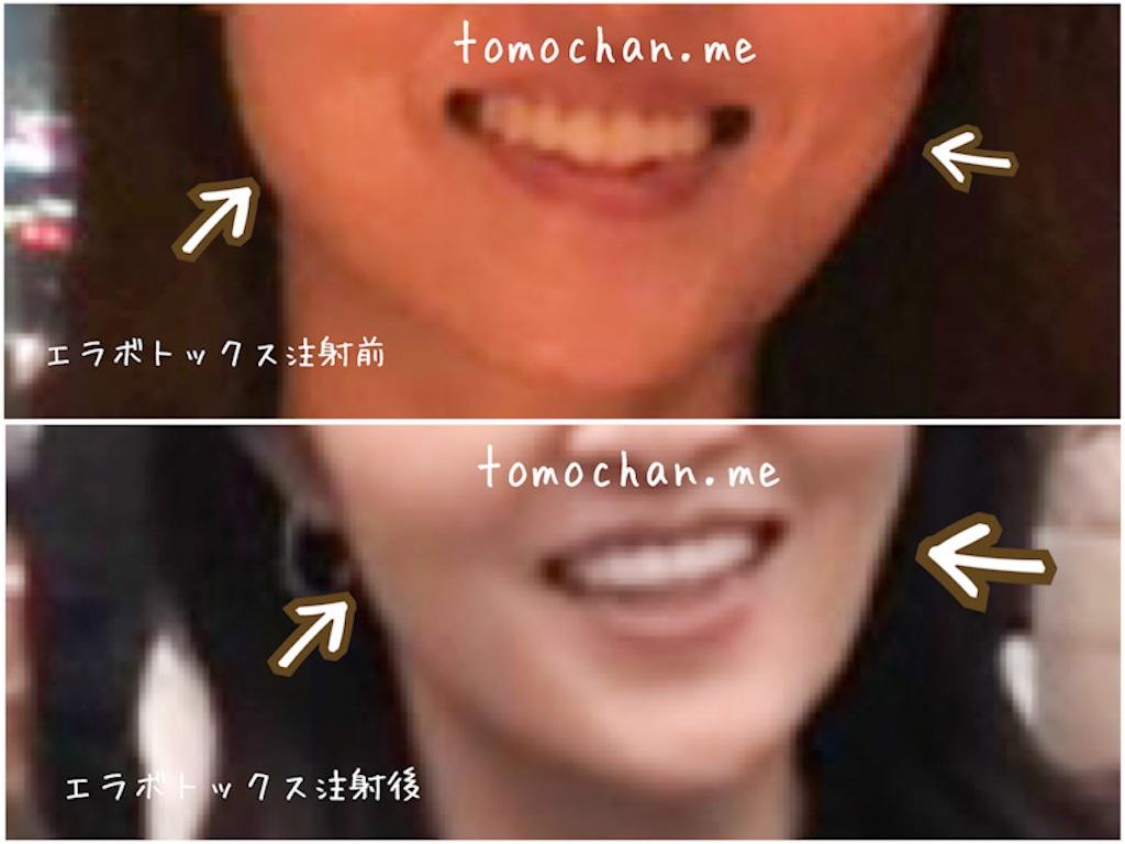 f:id:tomochan-me:20210115174603j:image