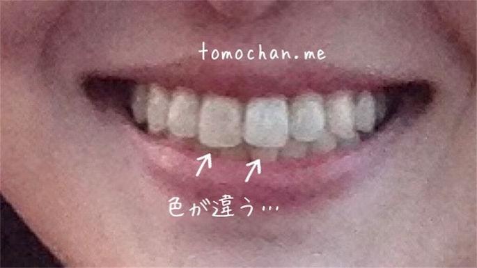 f:id:tomochan-me:20210209234007j:plain