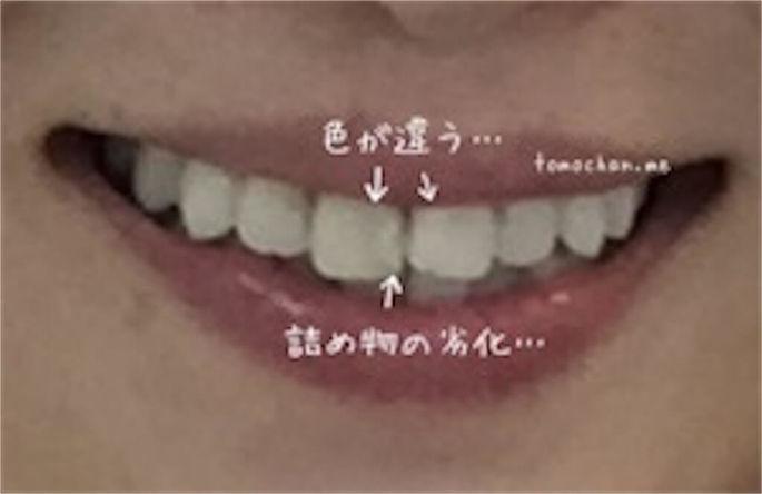 f:id:tomochan-me:20210210013237j:plain