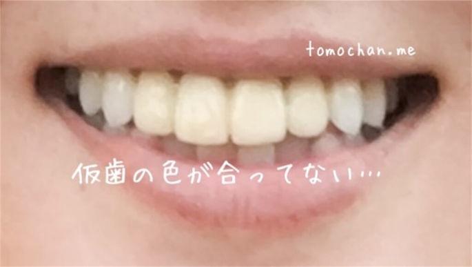f:id:tomochan-me:20210210013344j:plain