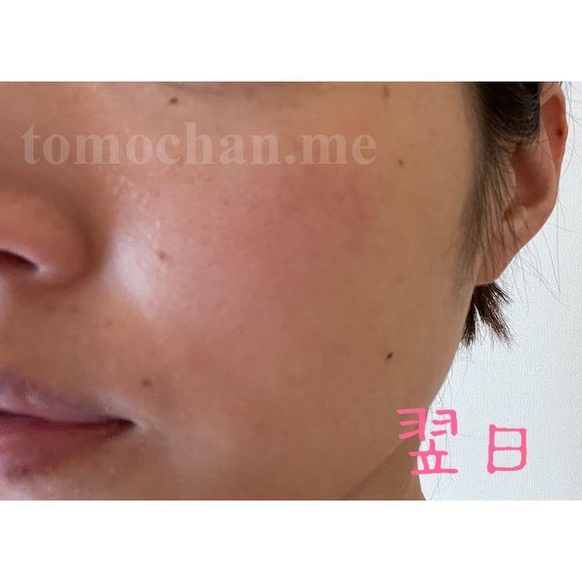 f:id:tomochan-me:20210321170014j:plain