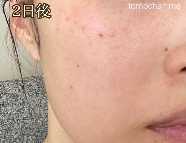 f:id:tomochan-me:20210928215124j:image