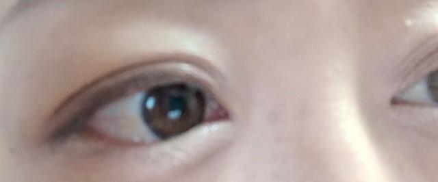 使用前の目の画像