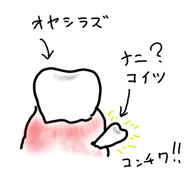 f:id:tomozonesu:20180425192808p:plain