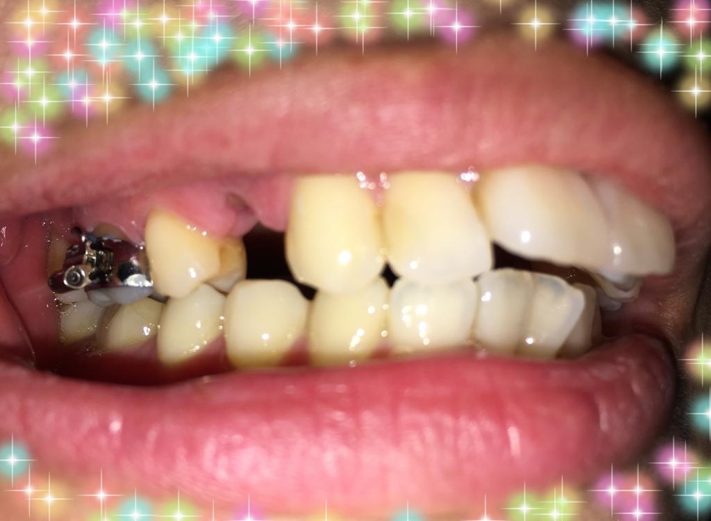 f:id:toothdiary:20170408182059j:plain