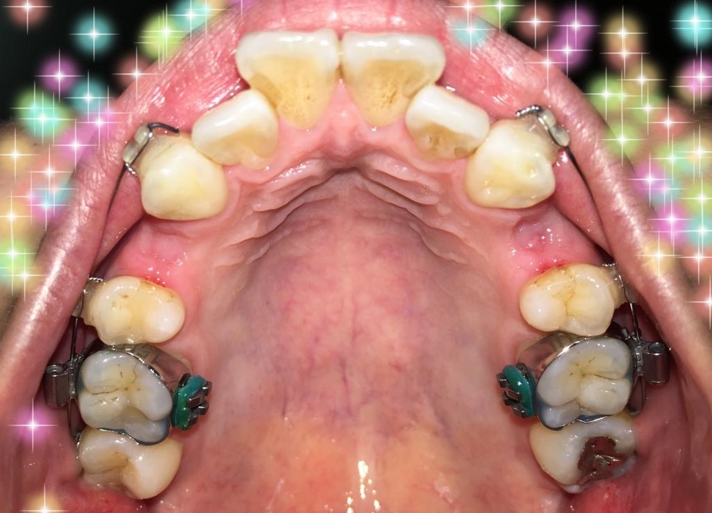 f:id:toothdiary:20170530234412j:plain