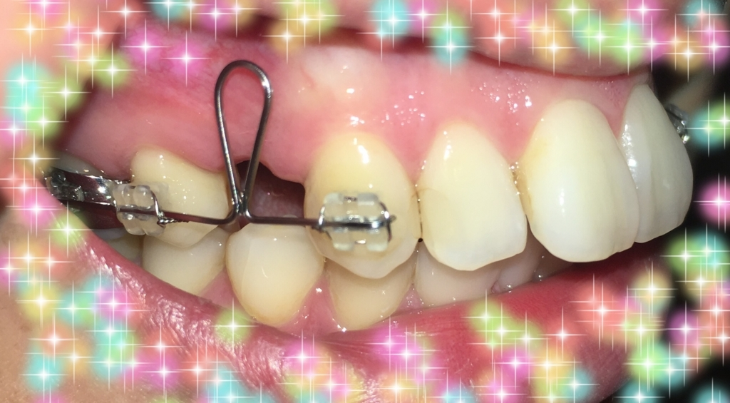 f:id:toothdiary:20170729000327j:plain