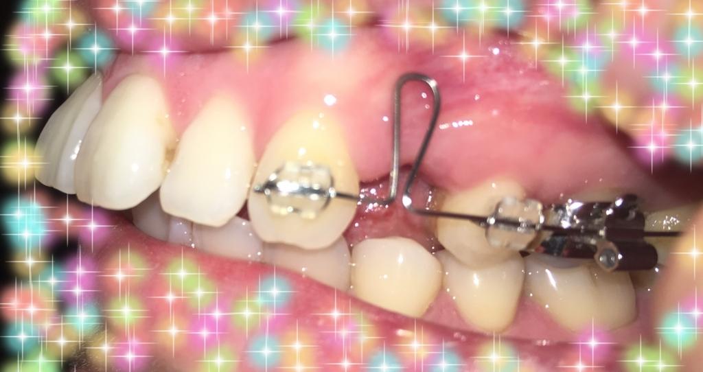 f:id:toothdiary:20170729000850j:plain