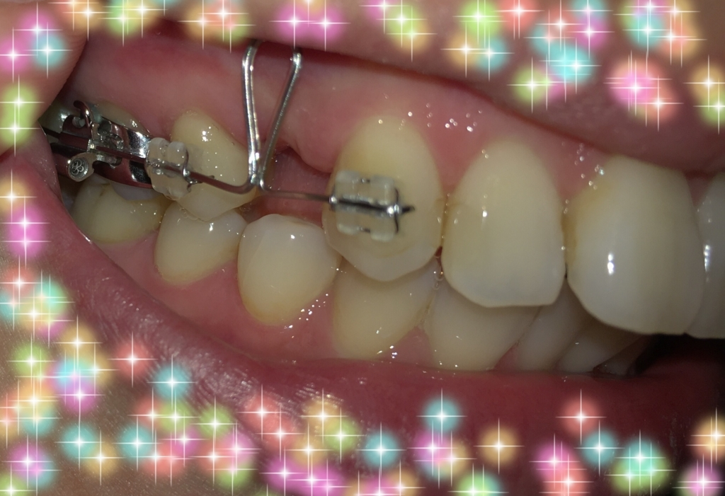 f:id:toothdiary:20170910091040j:plain