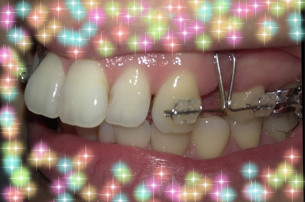 f:id:toothdiary:20170910091245j:plain